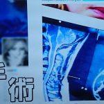 X-JapanのYOSHIKIさんが緊急手術となった頚椎症(椎間孔狭窄症)とは?